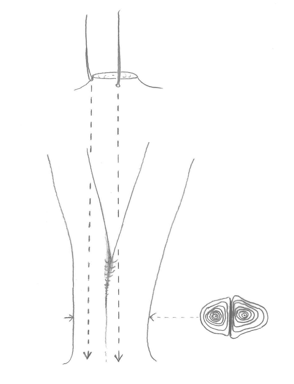 Les rejets sont sélectionnés de façon à être assez éloignés les uns des autres afin d'éviter l'apparition d'écorces incluses lorsque les tiges grossiront. Plus le diamètre de la souche est grand, plus la mise en place des inclusions sera retardée.